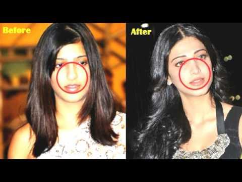 before and after surgeries Shilpa Shetty|Shruti Hassan|Karishma Kapoor|Anushka Sharma