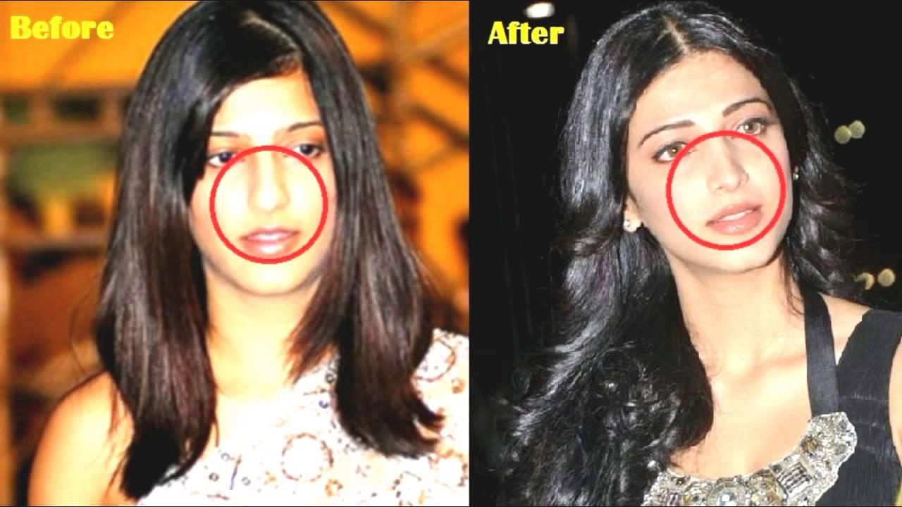 before and after surgeries shilpa shetty shruti hassan karishma