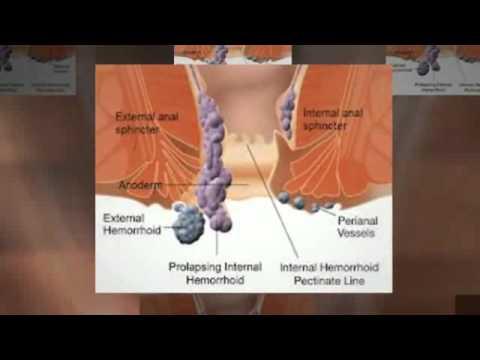 hemoroide interne - YouTube