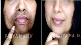 Remove Dark Black patches, Dark Spots Around Your Mouth~ Get Rid Of Hyper Pigmentation | Priya Malik