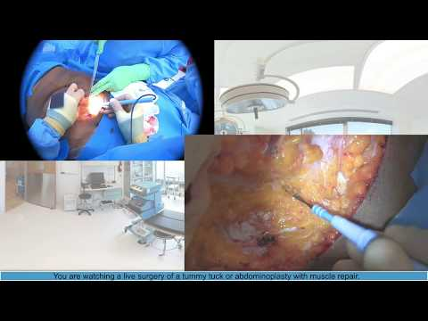 Tummy Tuck: Plastic Surgery Live Streaming, Dr Michael J. Brown