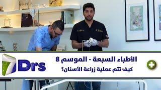 كيف تتم عملية زراعة الأسنان؟