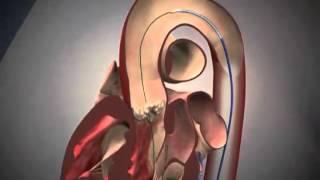 exaust valve