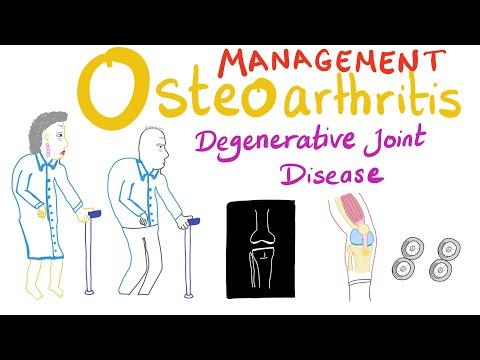 Osteoarthritis (OA) Part 6: Management [last Part]