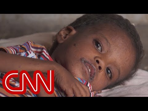 Yemen\'s children are silently starving to death