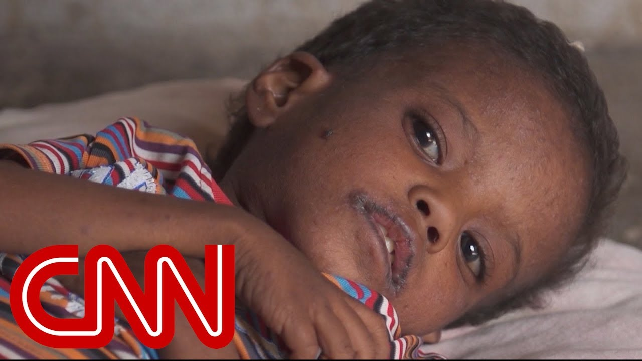 Yemen's children are silently starving to death