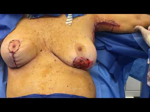 Arm Lift,  Breast Implant/Lift, Back Lift, Trunk Liposuction, Brazilian Buttlift Part 1