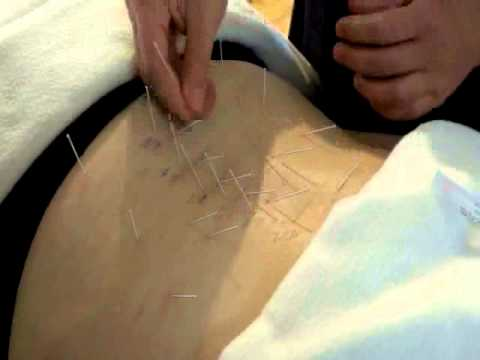 Acupuncture for Sciatica - www.taiji.net