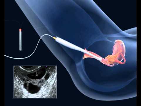 Exerciții preventive împotriva varicelor pentru gravide