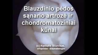 Čiurnos sąnario artroskopija: chondromatoziniai kūnai ir artrozė