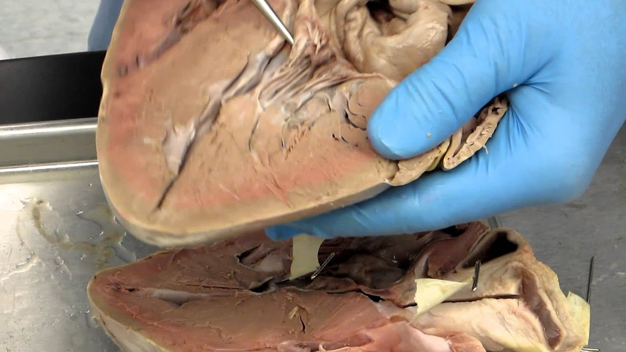 Ap2 heart dissection internal youtube ccuart Images