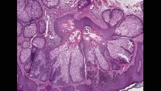 Sebaceous gland hyperplasia NYC  - (212)-644-6454 - NYC Sebaceous Gland Hyperplasia Thumbnail