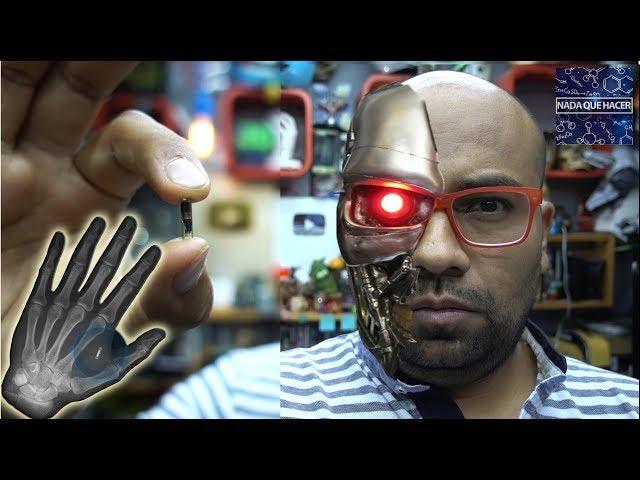 Me puse un implante bionico (biohacking) ahora soy un cyborg  NQUEH