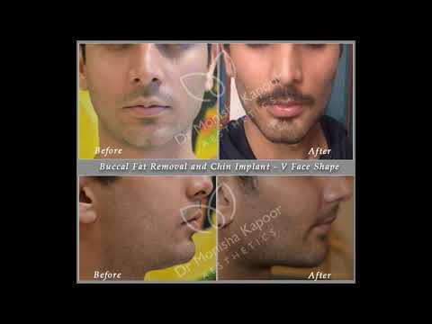 Top 10 Plastic Surgery In India ( With Photos ) By Dr. Monisha Kapoor Aesthetics 2020