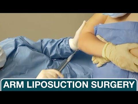 Plastic Surgeon Demonstrates Arm Liposuction - Dr. Khalifeh Plastic Surgery