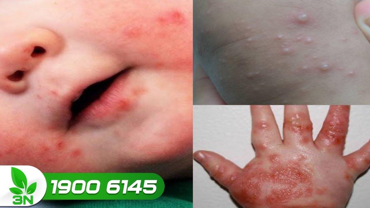 Làm thế nào để nhận biết trẻ mắc bệnh tay chân miệng thể nặng?   VTC16