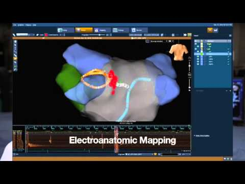 Part 3 of 5: Atrial Fibrillation Ablation - What to expect on the day of the procedure