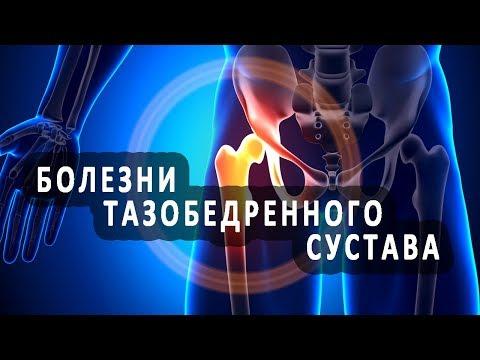5 распространенных болезней тазобедренного сустава