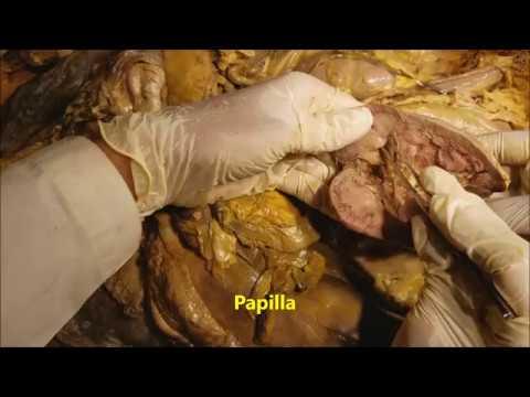 Kidney-Ureter-Suprarenal Gland Surgical Dissection - Sanjoy Sanyal