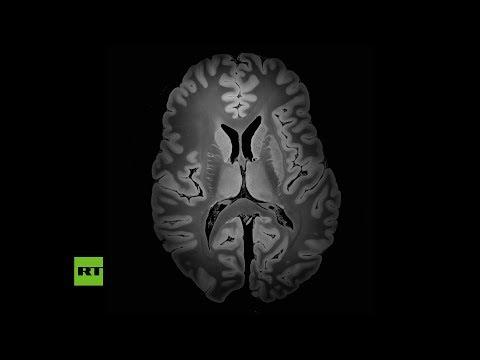 Resonancia magnética capturó la imagen más detallada del cerebro humano