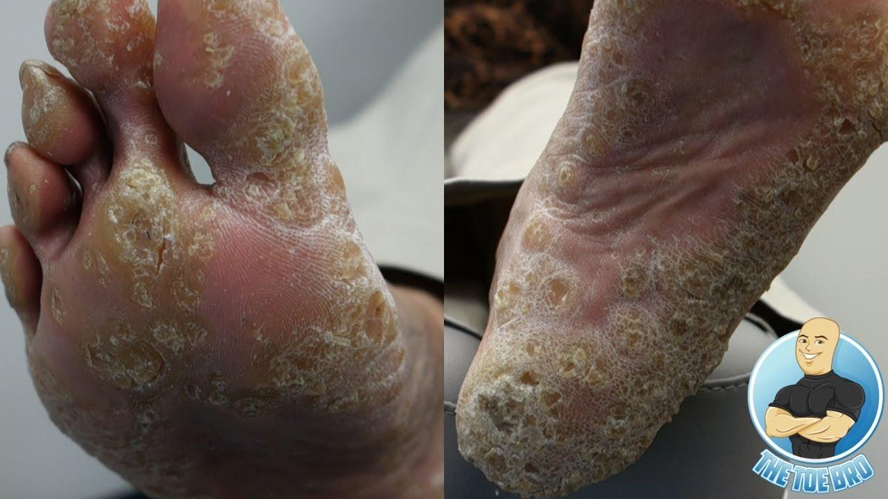 HOW TO TREAT REMOVE FOOT CALLUS  CALLOUS AND CORNS  FOOT