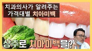치과의사가 알려주는 가…