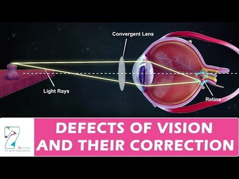 DEFECTS OF VISION AND THEIR CORRECTION