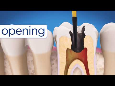 AAE Root Canal Treatment