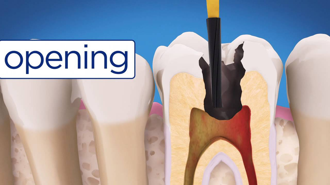 Aae Root Canal Treatment - Youtube-6624