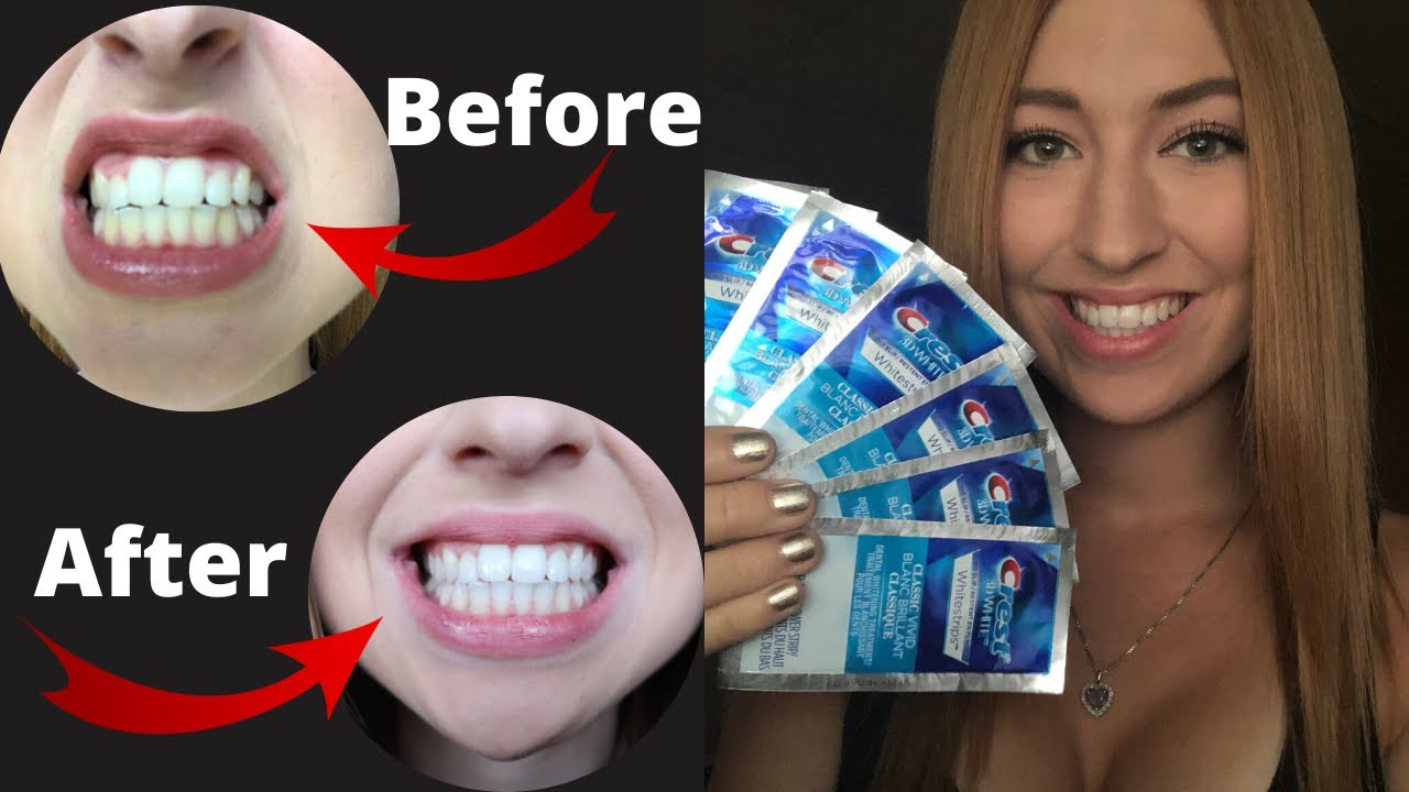 Crest 3d White Strips Review Great Results Youtube
