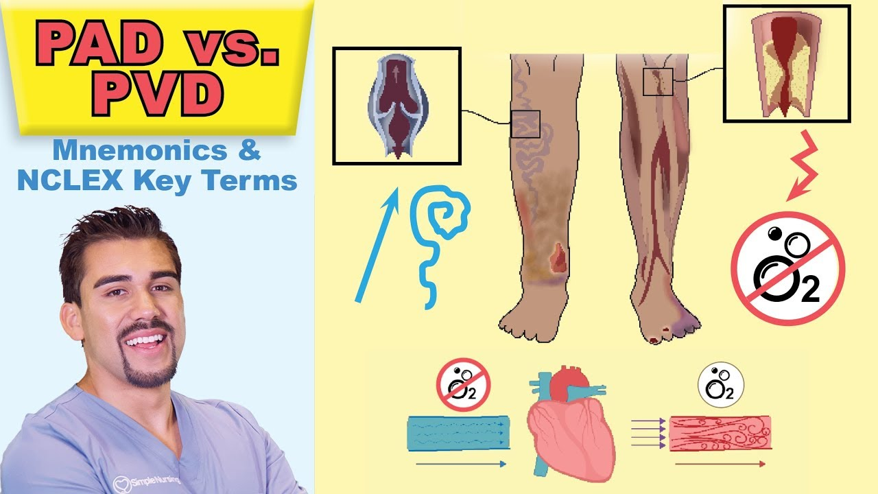 sign and symptoms of peripheral artery disease
