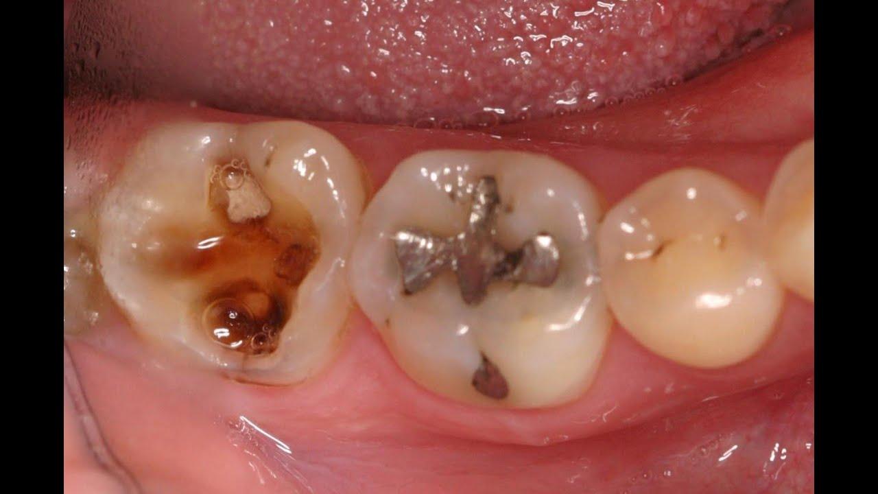 Rotten Molar