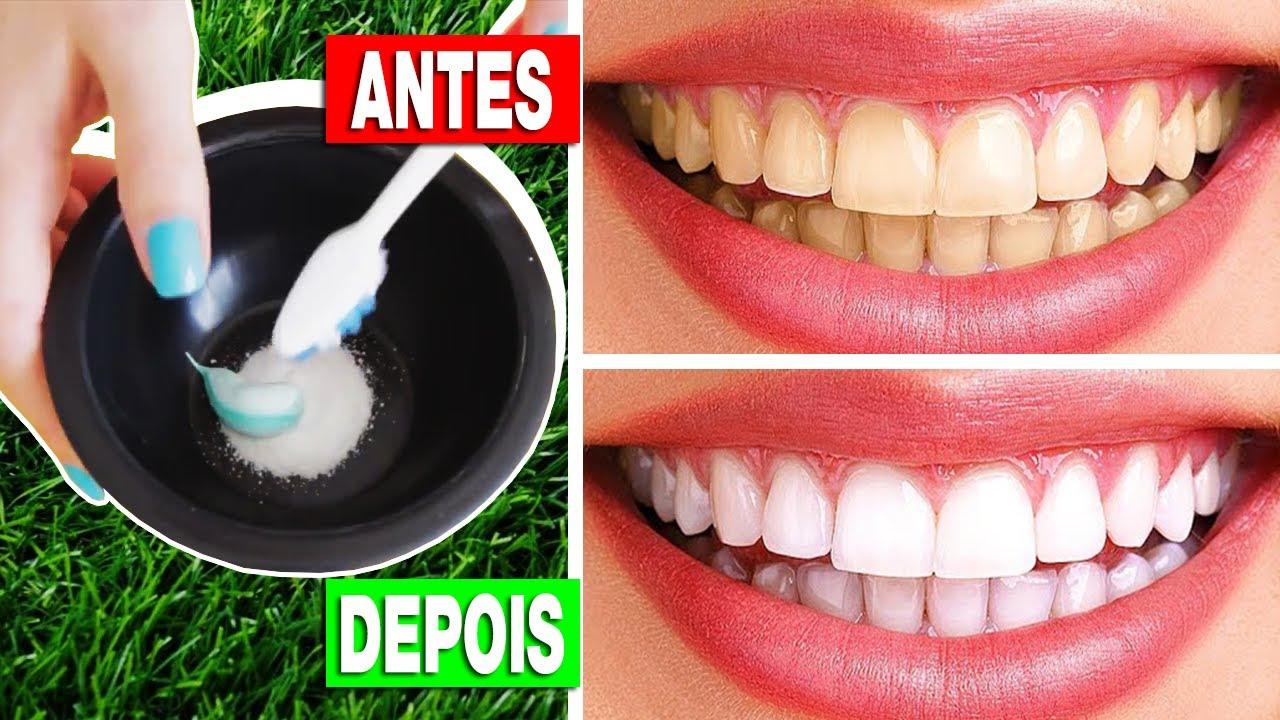 Como Clarear Os Dentes Com Bicarbonato Clarear Os Dentes Receita