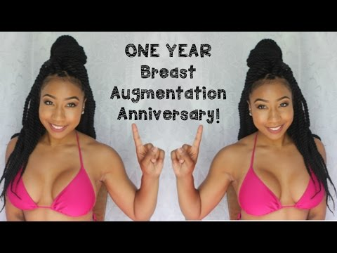 ♡ My ONE YEAR Breast Augmentation Anniversary | Was It Worth It? ♡