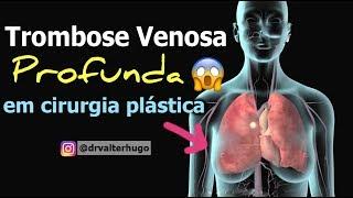Gastrocnêmica tratamento venosa da trombose