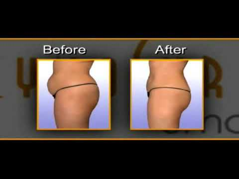 SmartLipo Laser Liposuction - Part 2 - New Patient Video - (c) Cynosure