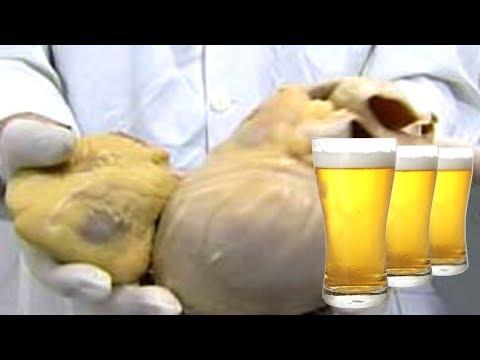 Was passiert, wenn man täglich viel Bier trinkt?