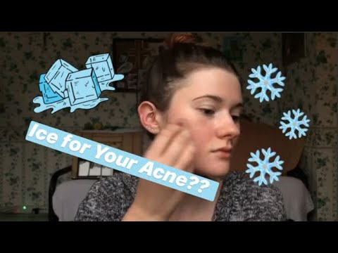ICECUBES FOR ACNE! How I Use Ice to Heal My Skin