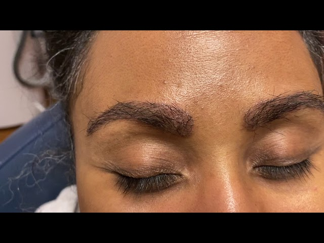 Dallas African-American Eyebrow & Hairline Transplant 2 Weeks Out
