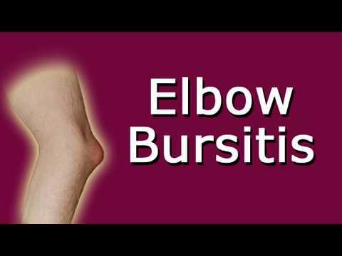 Elbow Bursitis