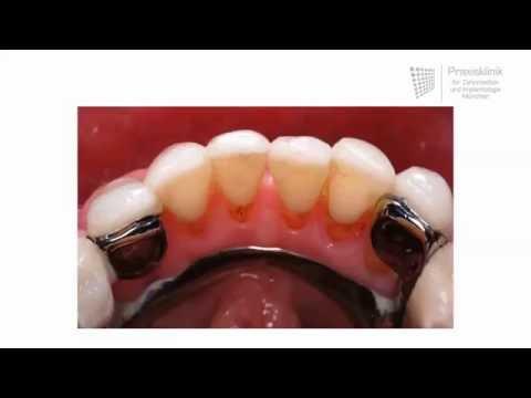 Herausnehmbarer Zahnersatz: Wie funktionieren Prothesen?