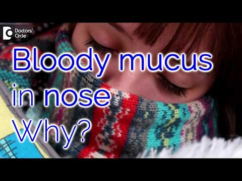 Why do I have bloody mucus in my nose? How it can be managed? - Dr. Satish Babu K