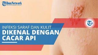 Mengalami gatal atau infeksi kulit secara tiba-tiba? Jangan panik! Lakukan Tips Ini!.