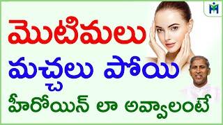 మొటిమలు మచ్చలు పోవాలంటే|motimalu machalu povalante emi cheyali| Manthena Satyanarayana|HealthMantra