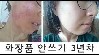 물로만세안 3년차/화장품안바르기/화장독/접촉성피부염/얼…