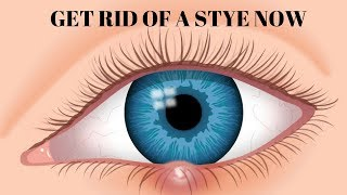 how to get rid of a stye in 5 minutes