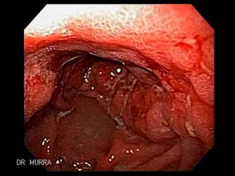 Infiltranting Gastric Cancer