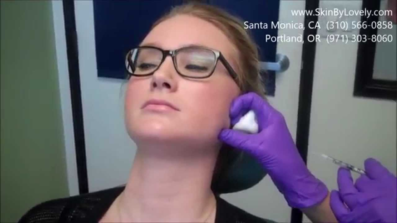 Treating Teeth Grinding and Masseter muscle with Botox