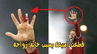 اغرب واطرف 10 اصابات في تأريخ كرة القدم .!!