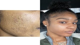 How I Cleared My Acne *I Had Acne for 10Yrs*